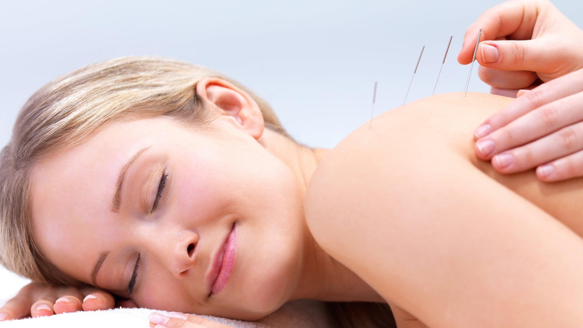 Akupunktur, Chinesische Akupunktur - Praxis Abadi - Heilpraktiker Frankfurt